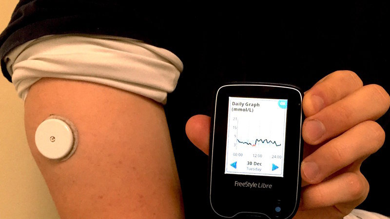 Rollout of high-tech diabetes monitors ahead of schedule