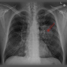 Kampanya Sgk Opdivo Ilacı Kullanan Akciğer Kanseri Hastalarının
