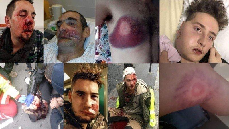 """Résultat de recherche d'images pour """"blessure LBD 40"""""""