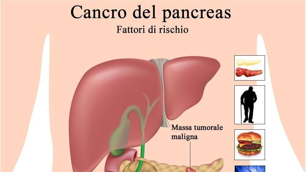 come si manifesta il tumore al pancreas