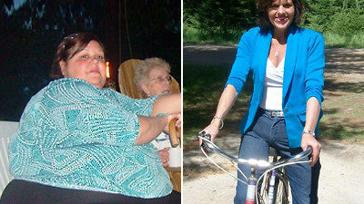 Petition Increase Medicare Rebates For Weight Loss Surgery