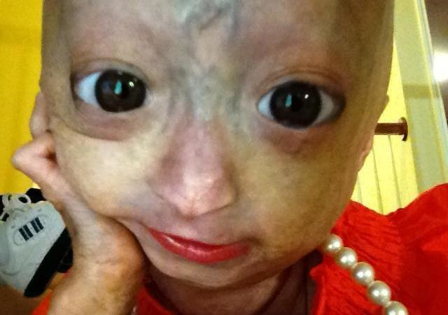 dalia rose  Petition · Remove the Adalia Rose facebook page And quit exploiting ...