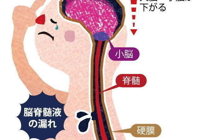 液 漏 症状 髄