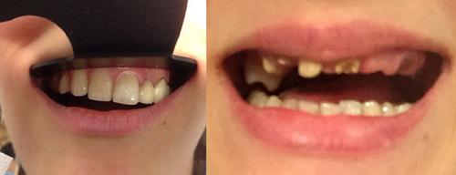 Протезирование зубов врачебные ошибки