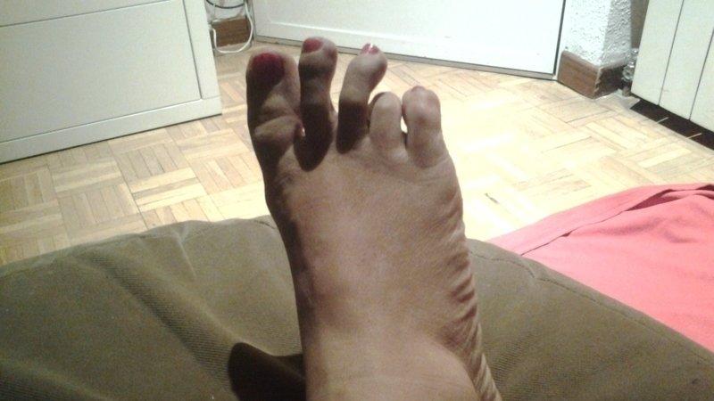 me duelen los dedos de los pies al caminar